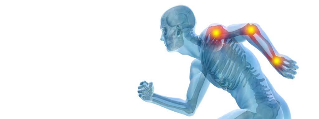 Anti-Inflammation Terpenes